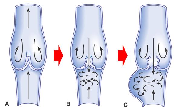 下肢静脈瘤の仕組み