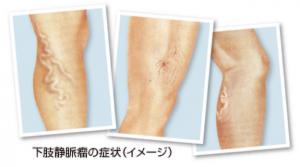 下肢静脈瘤イメージ