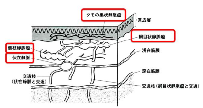 下肢静脈瘤場所