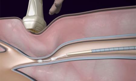 大注目の医療用接着剤「スーパーグルー」治療!下肢静脈瘤の新治療を探る!