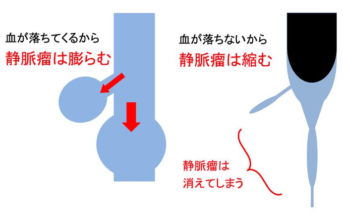 下肢静脈瘤治療原理