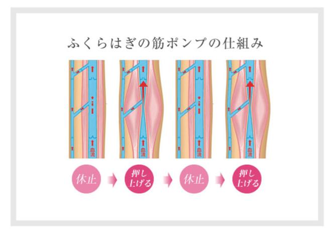 下肢静脈瘤筋ポンプ法