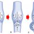 【徹底解剖】本当は怖い下肢静脈瘤!その原因と予防法を探る